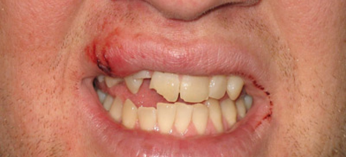 Do Mouth Guards Prevent Teeth and Mouth Injuries in Athletes