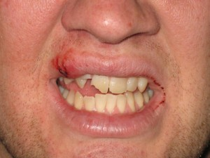 Teeth and Mouth Injuries