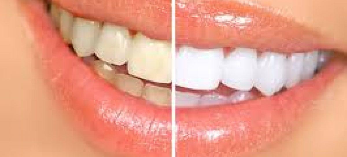 Natural ways to treat yellow teeth successfully