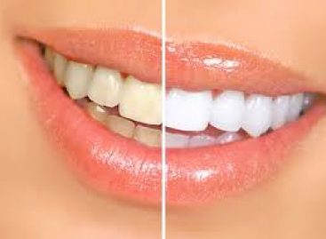 Natural ways to treat yellow teeth successfully