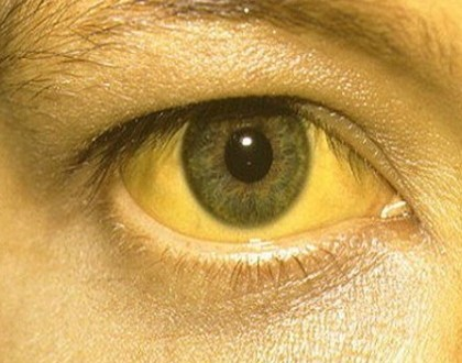 Effective Home Remedies For Jaundice