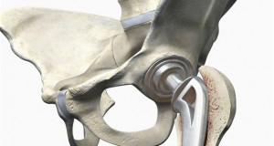 Hip Replacement1