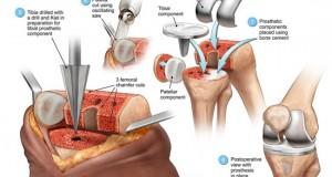 Knee Arthroplasty Surgery