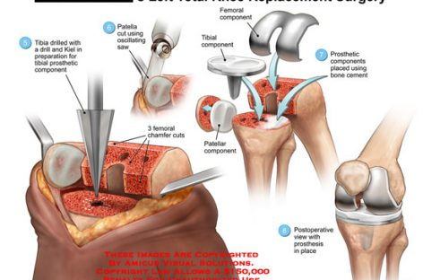 The Secret to a Successful Recovery After Knee Arthroplasty Surgery