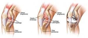 Knee Arthroplasty Surgery1