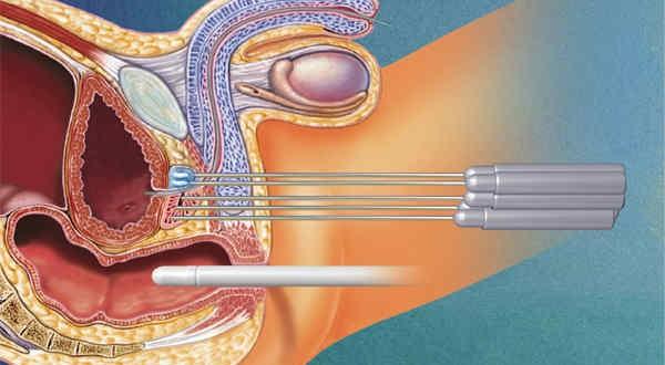 Cryosurgery1