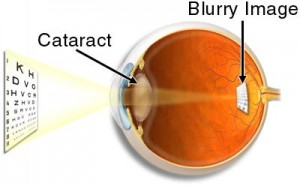 cataract1a