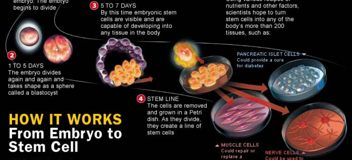 Stem Cells Therapy: The new hope for healing degenerative diseases