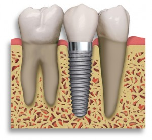 Dental Implants1