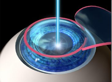 Lasik, a permanent solution for nearsighted problems