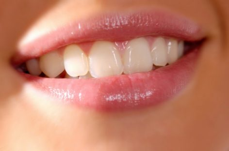 Keep a healthy tooth in order to look fresh
