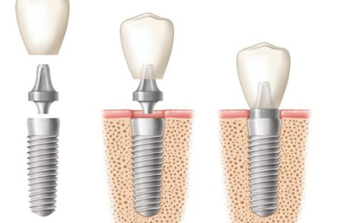 Face the world with confidence and opt for dental replacement by expert dentists