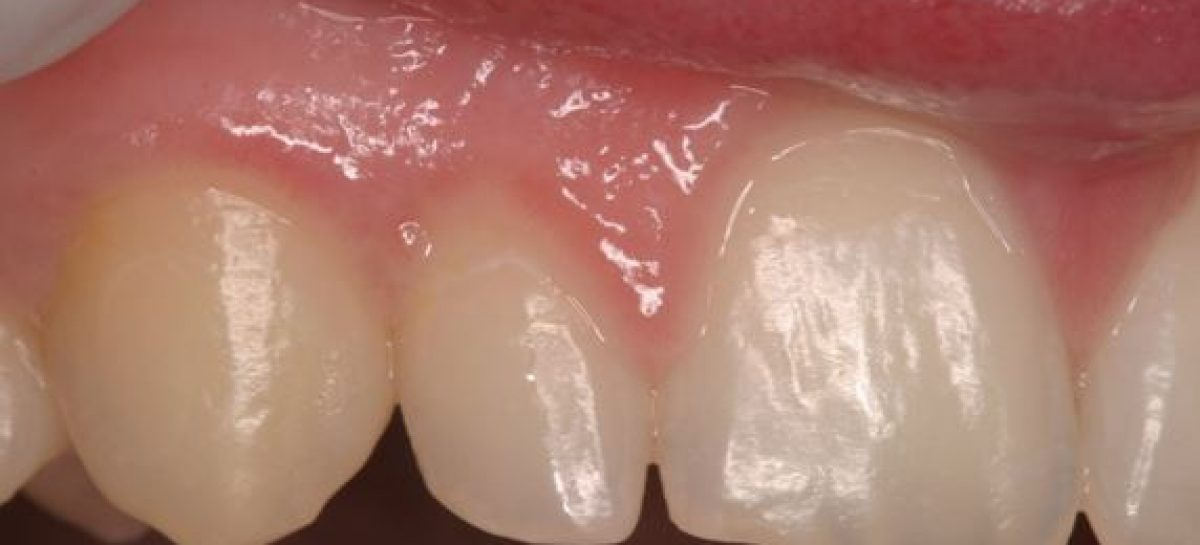 Know about the general dentistry