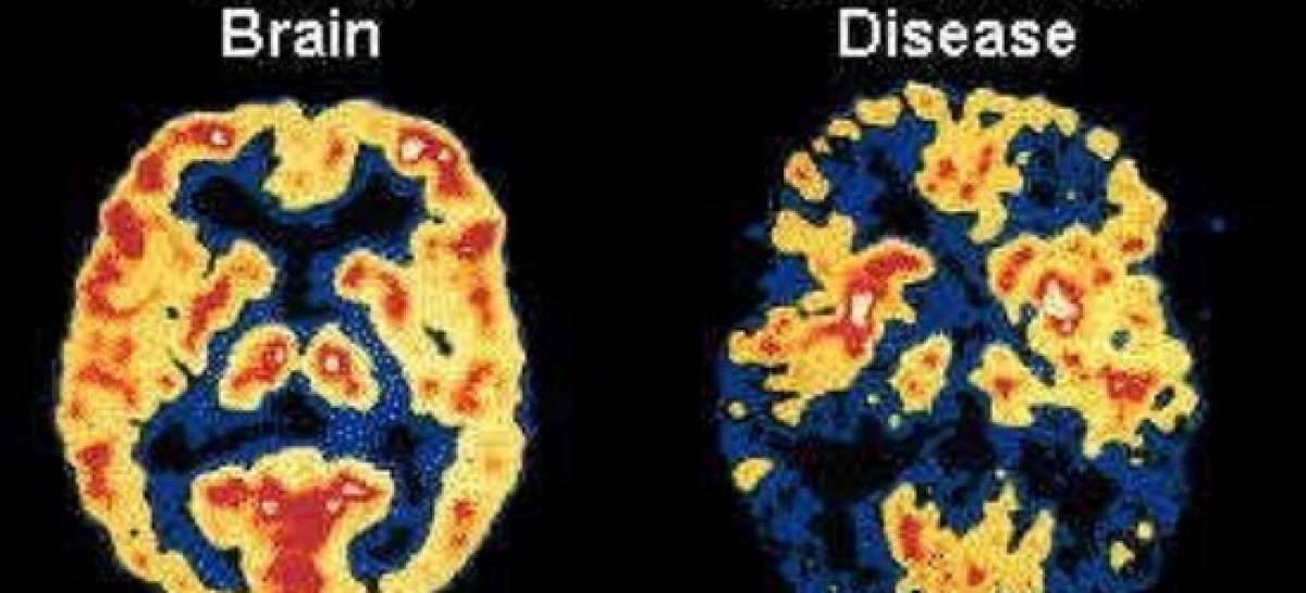 Know how to cure the Alzheimer's disease