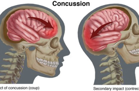 Concussion Rates Are on the Rise for Kid