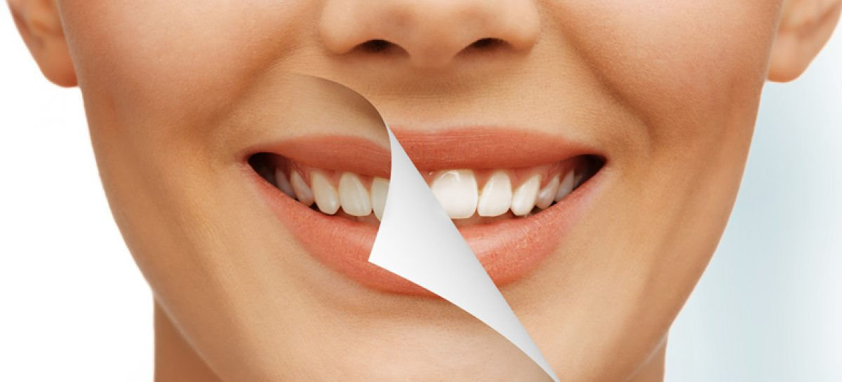 Find the Fountain of Youth with Cosmetic Dentistry