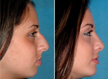 Things involved in the rhinoplasty procedure