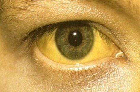 The best home remedies for jaundice in adults