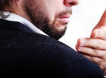 The most outstanding approaches to throw out dandruff