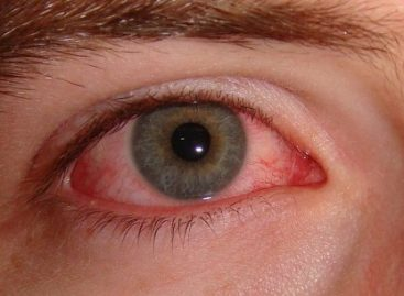 The most common natural treatments for dry eye syndrome
