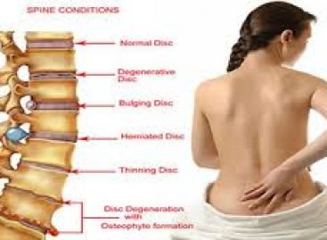 The most admirable ways to throw out back pain problems entirely