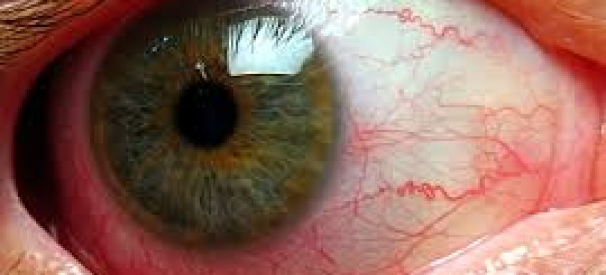 Home remedies for red eyes problems