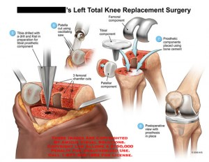 Knee Arthroplasty Surgery