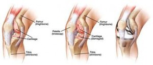 Knee Arthroplasty Surgery1
