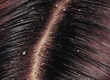 Golden guidelines for better natural dandruff cure