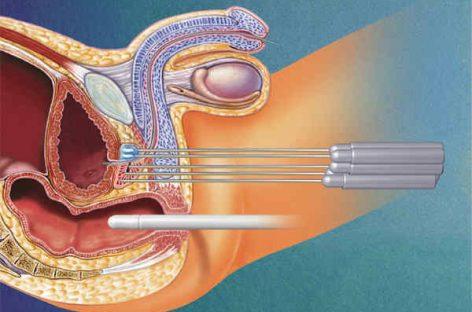 Cryosurgery: Frozen Hazard for Cancer