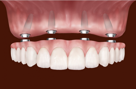 How Dental Implants are Done?