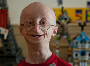 Knowing Progeria, an aging disease caused by gene mutation