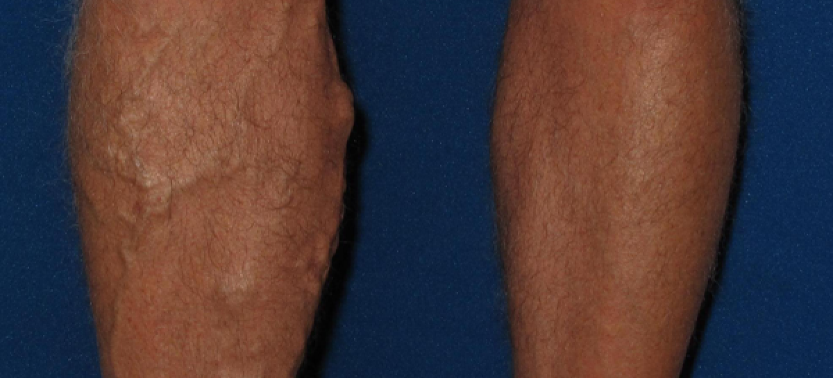 What is varicose vein and how to find the treatment options?