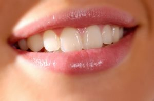 Close up photo of smiling woman's mouth and teeth.