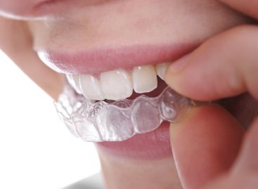 All about orthodontics invisalign