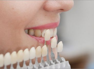 Go for cavity repair if you have the problem
