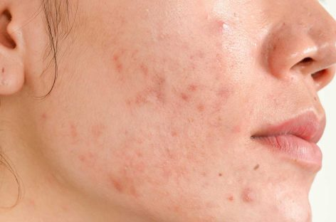 What Can Dermatologists Do For Acne Scars
