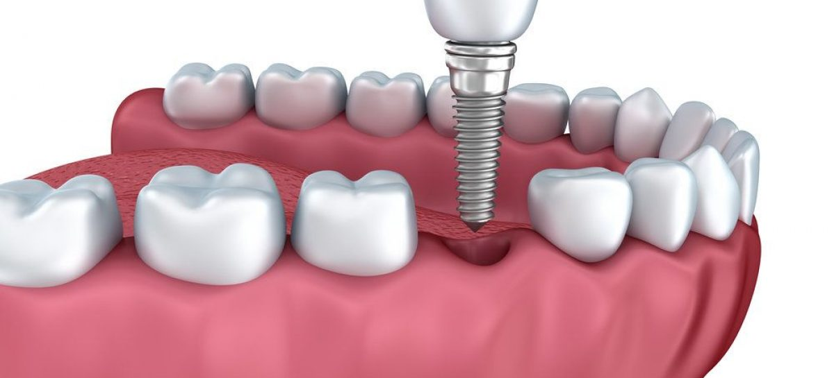 Things You Probably Didn't Know About Dental Implants