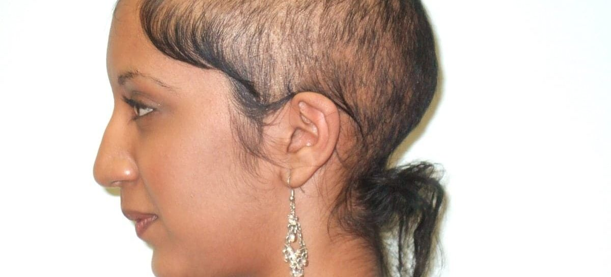 How Women Can Deal With Thin Hair After Taking Testosterone