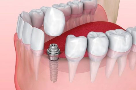 Can You Live Without Dental Implants
