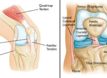 3 Common Knee Injuries