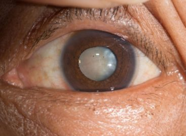 Learn More About These 3 Types of Cataracts
