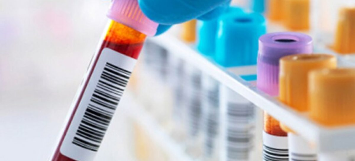 Facts About Basic Blood Testing