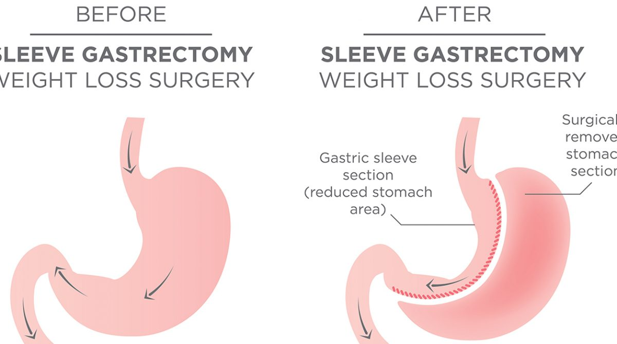 5 Things to Remember After Weight-Loss Surgery